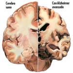 El Alzheimer: ¿Puede estar provocado por los hongos?